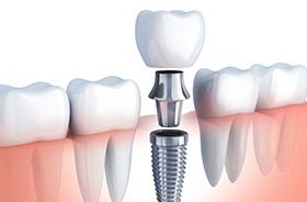 Animation of implant dental crown model
