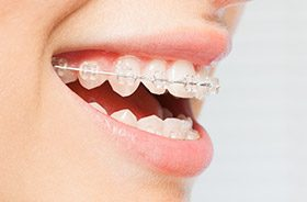 Clear bracket and wire braces