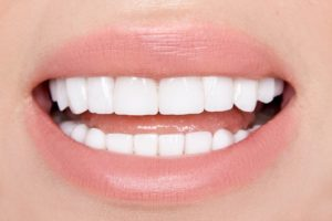 close-up of beautiful teeth after undergoing cosmetic dentistry