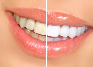 Smile before and after whitening porcelain veneers in Manchester