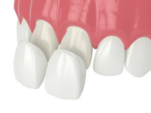 Illustration of veneers in Manchester being bonded to front teeth